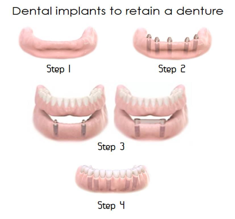 Replacing teeth with dental implants - Glen Lea Dental Suite