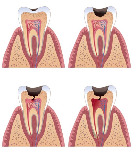 Tooth decay and fillings